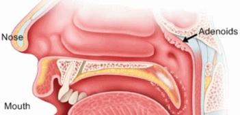 adenoidslocation