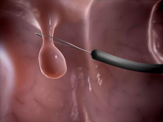nasal polyp.jpg
