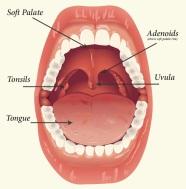 tonsils-adenoids-large