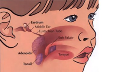 tonsils-and-adenoidseustachian tube